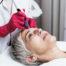 Microdermabrasion-Mesotherapie